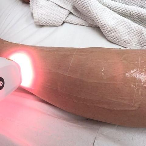 لیزر موهای زائد پا در مرکز الکس کندلا